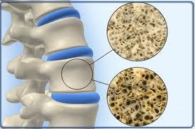 Aγρίνιο: Προληπτικός έλεγχος για τη μέτρηση οστικής πυκνότητας