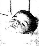 Ο ΕΠΙΣΗΣ ΤΡΑΥΜΑΤΙΑΣ ΜΙΚΡΟΣ Ε. ΜΠΙΛΙΑΣ ΣΤΟ ΝΟΣΟΚΟΜΕΙΟ ΠΟΥ ΝΟΣΥΛΕΥΤΗΚΕ-1962