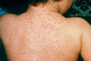 To ΚΕΕΛΠΝΟ ενημερώνει για την ιλαρά