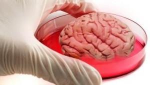 τεχνητός εγκέφαλος