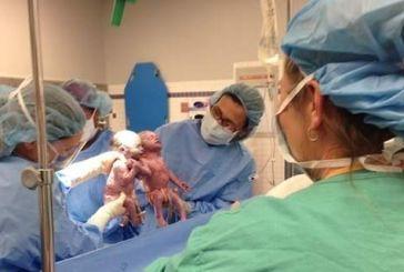Εξι στις δέκα γυναίκες στην Ελλάδα γεννούν με καισαρική τομή- Ποιοι λόγοι οδηγούν στο χειρουργείο
