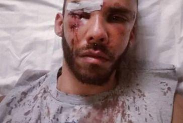 Γάλλοι αυτοί που ξυλοκόπησαν τον 30χρονο Μεσολογγίτη φοιτητή στο Ρέθυμνο