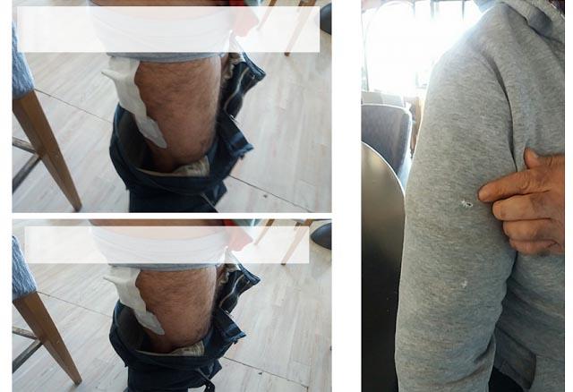 Επίθεση από αδέσποτα σκυλιά σε 52χρονο στη Βόνιτσα (video)