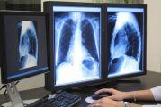 Ανακαλύφθηκε ένα νέο «αόρατο» όργανο που φαίνεται να παίζει ρόλο στους καρκινικούς όγκους