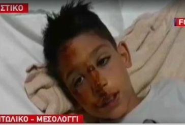 Σοκάρει η περιγραφή του 8χρονου από το Αιτωλικό για την άγρια επίθεση από σκυλιά (video)