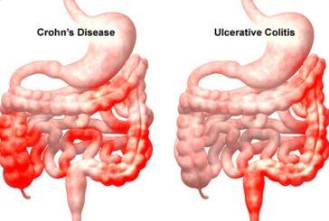 Hμερίδα στο Αγρίνιο, «νόσος του Crohn και ελκώδη κολίτιδα, χρόνιες παθήσεις»
