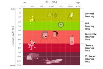 Μέτρηση Ακοής – Ακουόγραμμα