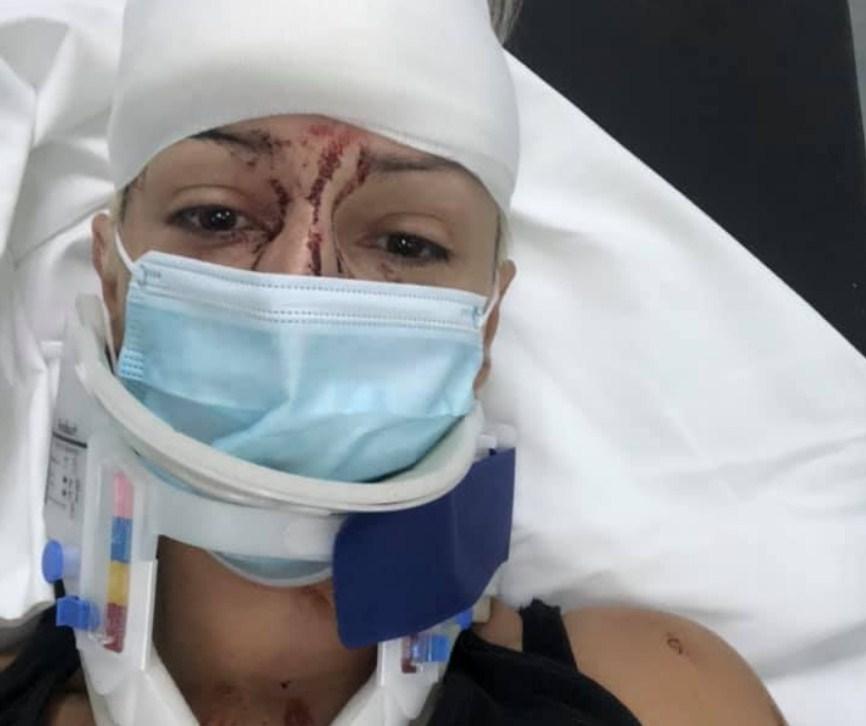 Τραυματίας σε τροχαίο γνωστή Αγρινιώτισσα δημοσιογράφος-Ποιο μήνυμα στέλνει