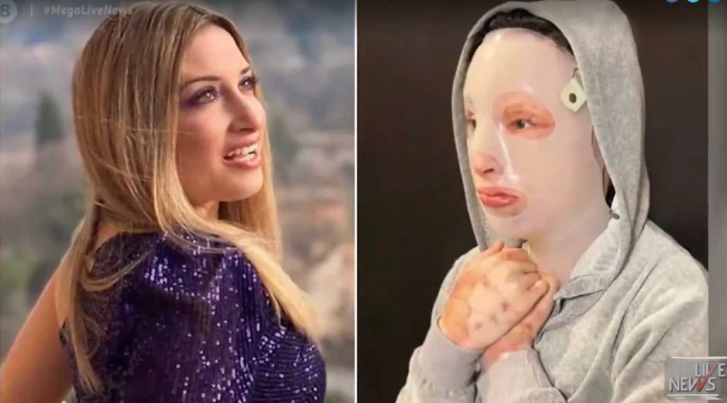 «Ένα χρόνο μετά δεν έχει αλλάξει τίποτα», ξέσπασε η Ιωάννα για την επίθεση με καυστικό υγρό στη Μονή Πετράκη