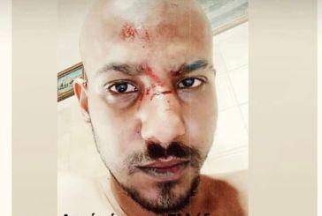 Δικογραφία για τον ξυλοδαρμό 27χρονου στη Ναύπακτο-πως έγινε το επεισόδιο, ενδείξεις για  ομοφοβικά κίνητρα