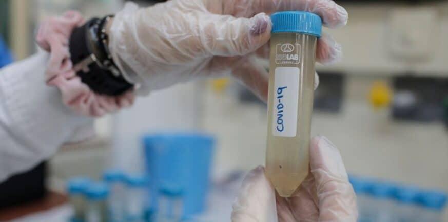 Κορωνοϊός: αυξημένο ιικό φορτίο στα αστικά λύματα Βόνιτσας και Παλαίρου